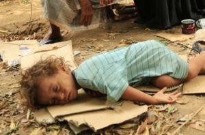 Urgence Famine au Yémen